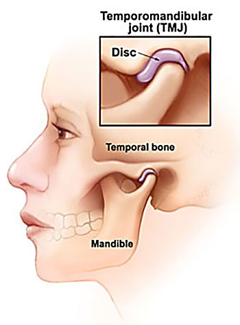 Temporomandibular Joint Disorder caused by motor vehicle accident